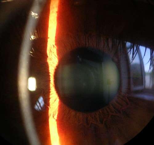 La cornée est la région la plus externe de l'œil grâce à laquelle la lumière commence à être réfractée. Chaque année, 65.000 greffes de cornée sont réalisées dans le monde, avec parfois des complications. La nouvelle couche ainsi découverte pourrait les limiter. © Baristoprak, Wikipédia, DP