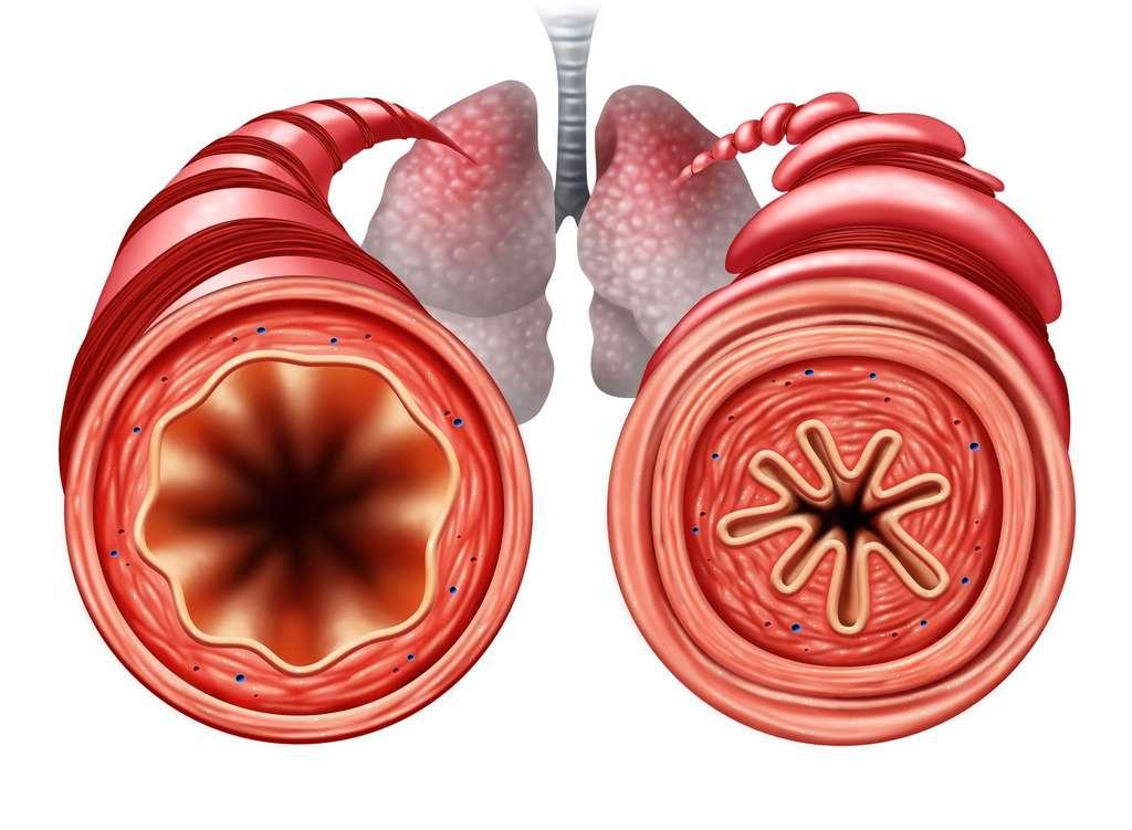 Chez les asthmatiques, il faut améliorer la dilatation des voies respiratoires pour aider l'air à mieux circuler. © freshidea, Fotolia