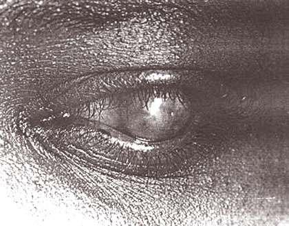 Trachome, perforation. © Reproduction et utilisation interdites