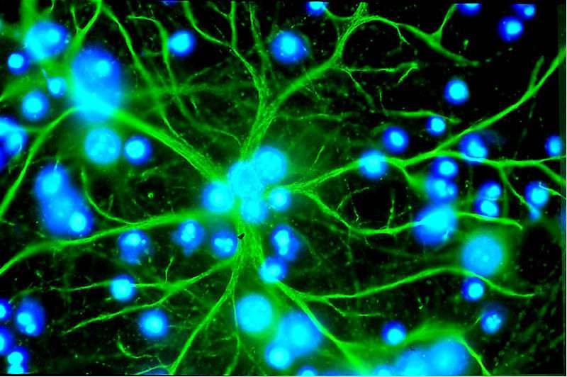 L'astrocyte, en vert, étend ses nombreux bras. Elle intervient à de nombreux niveaux dans le cerveau, comme le maintien structurel des neurones, mais n'est habituellement pas chargée de produire de la dopamine. © Karin Pierre, UNIL Lausanne, Wikipedia