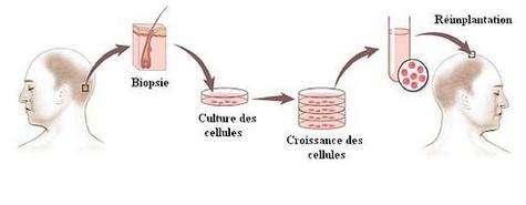 Les différentes étapes du clonage capillaire (Crédit : Intercytex/Christophe Olry/Futura-Sciences)