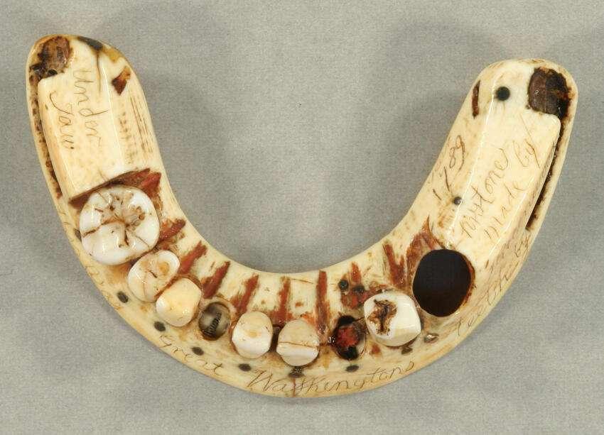 Ce dentier produit par Greenwood pour George Washington s'insère sur l'unique dent restante, au niveau de la mâchoire inférieure. © Mount Vernon