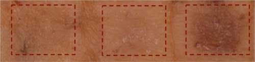 La peau humaine traitée in vitro pendant huit jours avec un inhibiteur de SIK (à droite) est plus pigmentée. La zone a été traitée avec une molécule témoin (à gauche) ou un autre inhibiteur qui pénètre moins bien dans la peau (au centre). © Nisma Mujahid and David E. Fisher, Cutaneous Biology Research Center, Department of Dermatology, Massachusetts General Hospital
