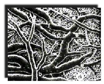 Image de vaisseaux sanguins à 3D, moulage de l'intérieur des vaisseaux obtenu par(copyright) P. Simoens, docteur de l'Université de Gand