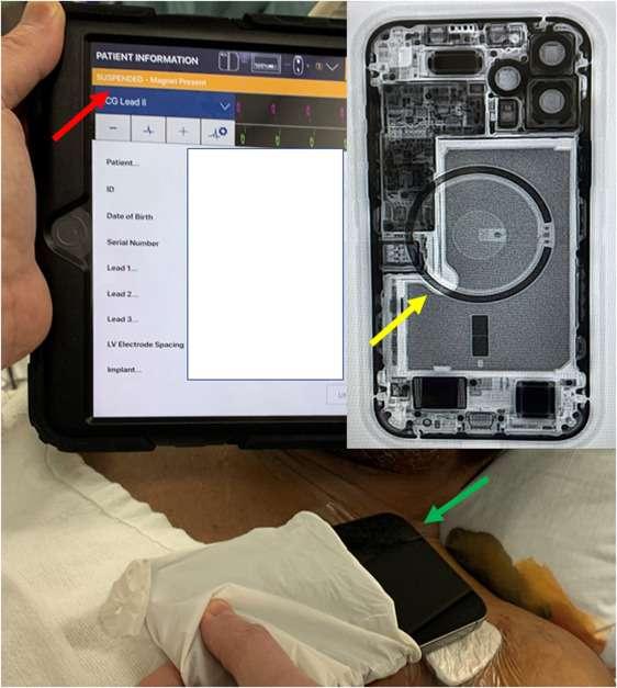 Placé près de la poitrine, l'iPhone suspend l'activité de l'implant © Heart Rhythm Society