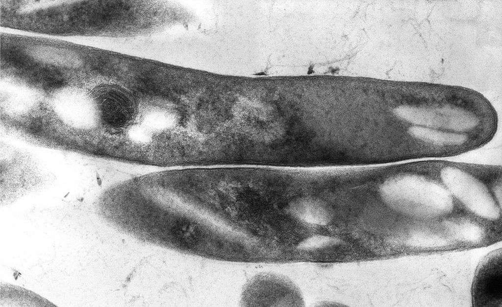 Mycobacterium tuberculosis, ici observé au microscope électronique à transmission, est également connu sous le nom de bacille de Koch. C'est une bactérie aérobie en forme de bâtonnet, longue de quelques micromètres, et capable de mettre à terre 1,4 million d'êtres humains chaque année. © Elizabeth Libby White, Centers for Disease Control and Prevention, Wikimédia Commons, DP