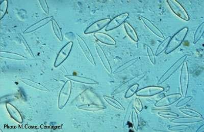 Les diatomées (à l'image) sont des algues très répandues dans toutes les mers du globe. © Coste, Cémagref