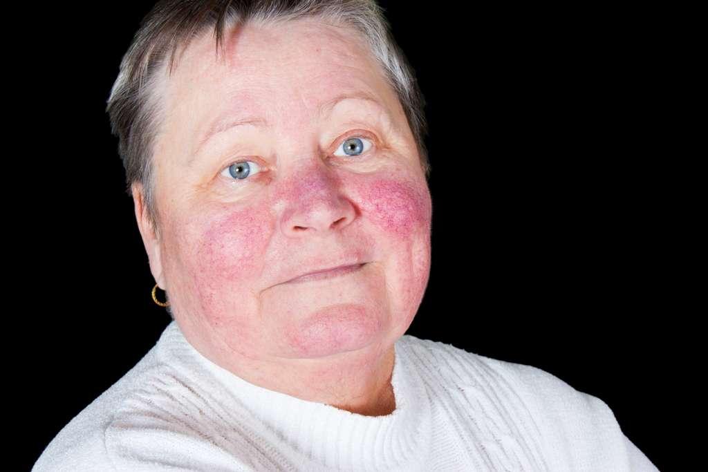 Des rougeurs persistantes peuvent être associées au coronavirus, affirment les dermatologues. © Lipowski, IStock.com