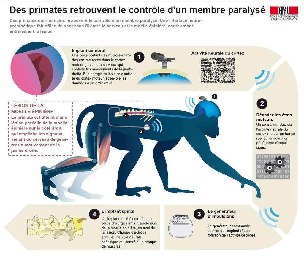 L'interface décode les informations du cerveau et envoie des impulsions pour stimuler le membre inférieur. © EPFL/Inserm