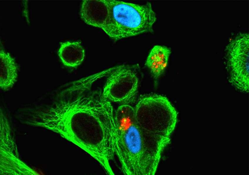 Infection par le cytomégalovirus (CMV), ici chez l'humain. En rouge et vert, les cellules Natural Killer essayent de se frayer un chemin vers la cellule infectée. © Inserm, Jabrane-Ferrat, Nabila