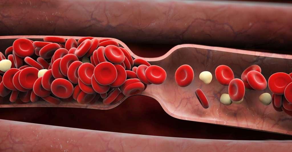 Hypertension artérielle. © Adimas, Fotolia