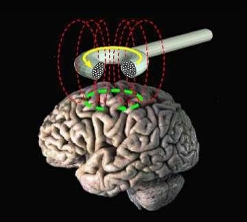 La stimulation magnétique transcrânienne est peut-être la nouvelle arme pour traiter durablement la dépression. © DR