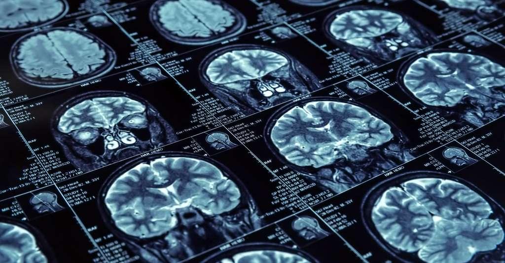 Testez vos connaissances sur le cerveau. © Nomad Soul, Fotolia