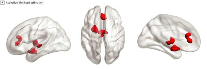 La cartographie des zones cérébrales sur-activées chez les personnes anxieuse ou dépressives. © Janiri et al.