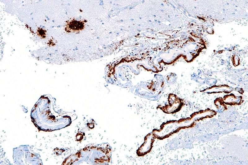 Cette image prise au microscope montre en marron les agrégats de bêta-amyloïdes par immunomarquage dans le cortex cérébral. Cette protéine vient s'accumuler entre les neurones et pourrait être la cause de la maladie d'Alzheimer, même si on n'a pas encore pu le prouver. © Nephron, Wikipédia, cc by sa 3.0