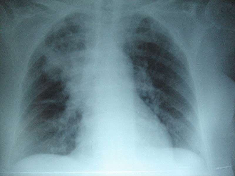 La mucoviscidose n'affecte pas que le système respiratoire. La maladie se caractérise par la production d'un mucus visqueux qui s'écoule mal et obstrue les bronches et les voies digestives. Elle engendre une sensibilité accrue aux infections pulmonaires comme la pneumonie (à l'image). © Joseaperez, Wikipédia, cc by sa 3.0