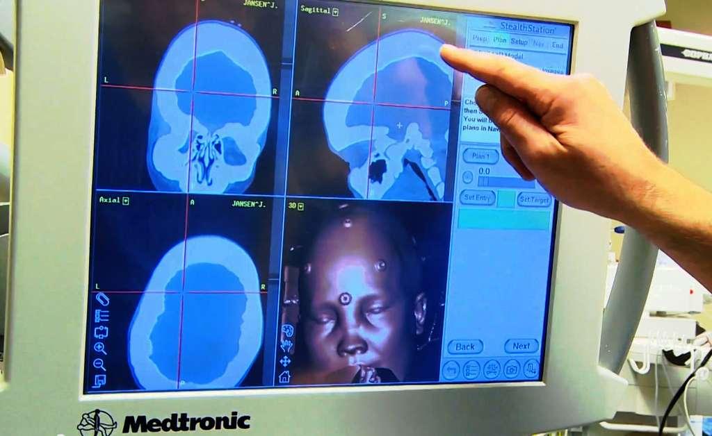 L'épaisseur du crâne biologique de la patiente, du fait de sa maladie osseuse chronique, atteignait 5 cm contre 1 cm en moyenne. © Centre universitaire médical d'Utrecht