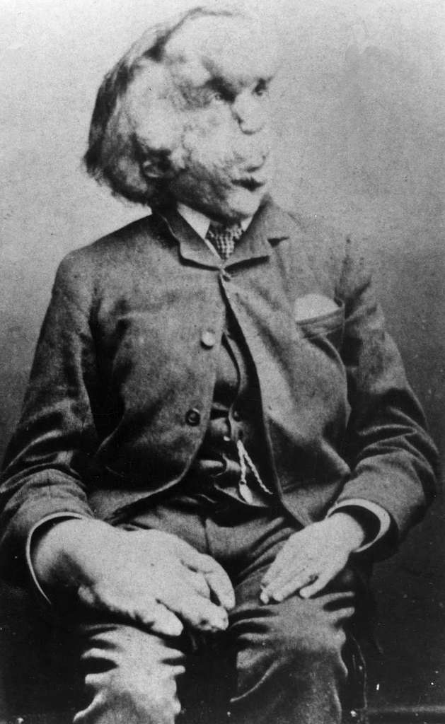 Joseph Merrick, plus connu sous le nom d'Elephant Man © Domaine public