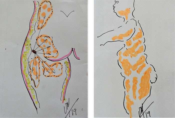 Illustration des répartitions différentes en profondeur des graisses superposées, superficielles et profondes. © Dr Mitz, tous droits réservés