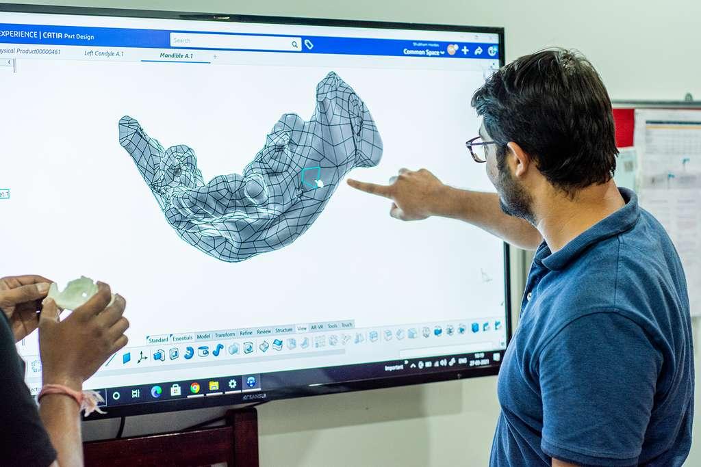 Grâce à la 3D (impression, visualisation), LUCID Implants parvient à réduire le coût des implants personnalisés et à optimiser le parcours de soin. © LUCID Implants