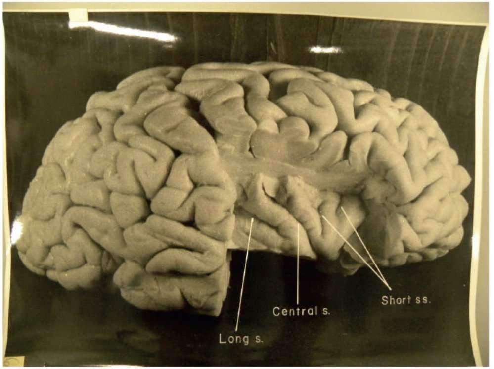 Une des photographies du cerveau d'Albert Einstein prises par Thomas Harvey en 1955. On voit ici l'hémisphère droit montrant l'insula, après la découpe de l'opercule pariétal. Ces images montrent les différents sillons (s sur les légendes – d'époque – incluses dans l'image). © National Museum of Health and Medicine