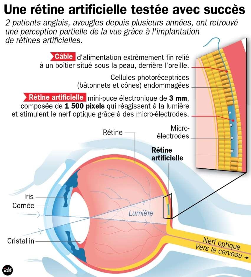 Ce schéma explique brièvement le fonctionnement d'un implant rétinien. La lumière est focalisée par la cornée et le cristallin vers la micropuce implantée juste sous la rétine. Les 1.500 électrodes transforment alors l'information lumineuse en signal électrique, transmis jusqu'au cerveau via le nerf optique. © Idé