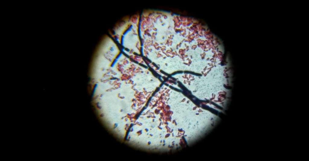 Bacillus cereus et Escherichia coli. © Bibliomaniac15 CC BY 3.0