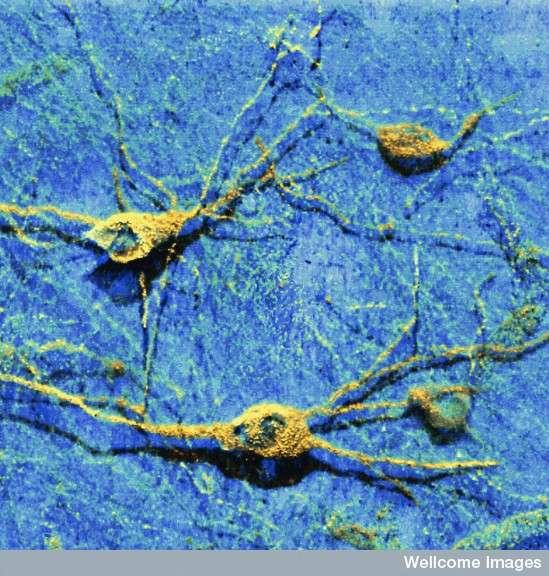 La suractivation de PDK1 favorise l'apparition des protéines néfastes pour la survie des neurones, comme les prions PrPSc et les Aβ40/42. © Med. Mic. Sciences Cardiff University, Wellcome Images, cc by nc nd 2.0