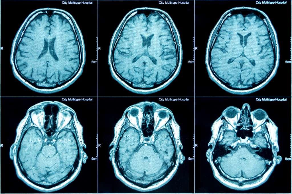 La technique de scanner ou IRM, qui permet d'obtenir une vue de l'intérieur du corps de façon non invasive, a été mise au point par le physicien britannique Peter Mansfield en 1977. © iztverichka, Adobe Stock
