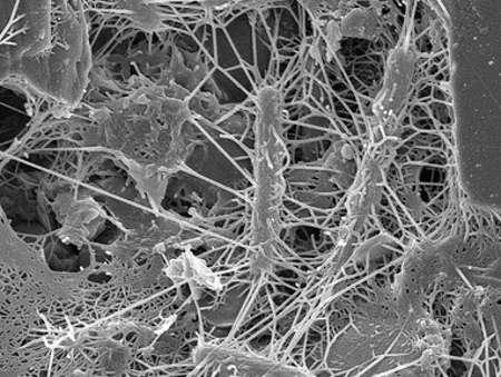 Dans la nature, les microbes se développent généralement sous forme de biofilms, qui sont des communautés microbiennes attachées sur une surface. Au cœur du biofilm, les micro-organismes établissent des relations symbiotiques et antagonistes complexes. © adonofrio, Flickr, cc by sa 2.0