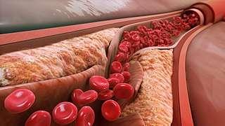 Le « mauvais » cholestérol favorise les plaques d'athéromes dans les artères. © Manu5, CC by-sa 4.0, Wikimedia Commons