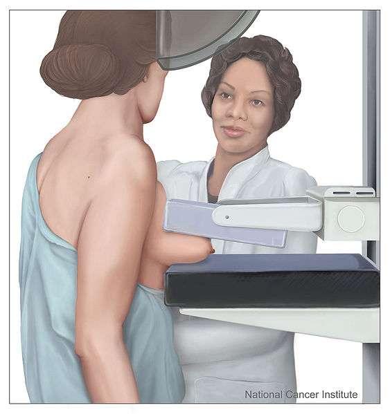 La mammographie est une technique de radiographie qui vise à détecter les tumeurs. Elle serait moins fiable pour les femmes trentenaires que l'échographie mammaire, qui utilise des ondes sonores au lieu de rayons X. © National Cancer Institute, Wikipédia, DP