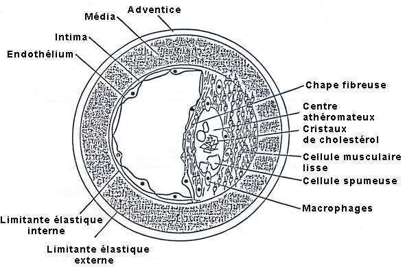 Coupe d'une artère en partie obstruée par une plaque d'athérosclérose. © cpvr.pagesperso-orange.fr