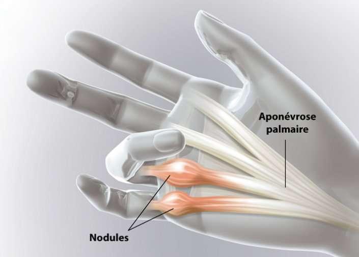 La maladie de Dupuytren se traduit par l'apparition de nodules au niveau des 4e et 5e doigts. © Ramsay Santé