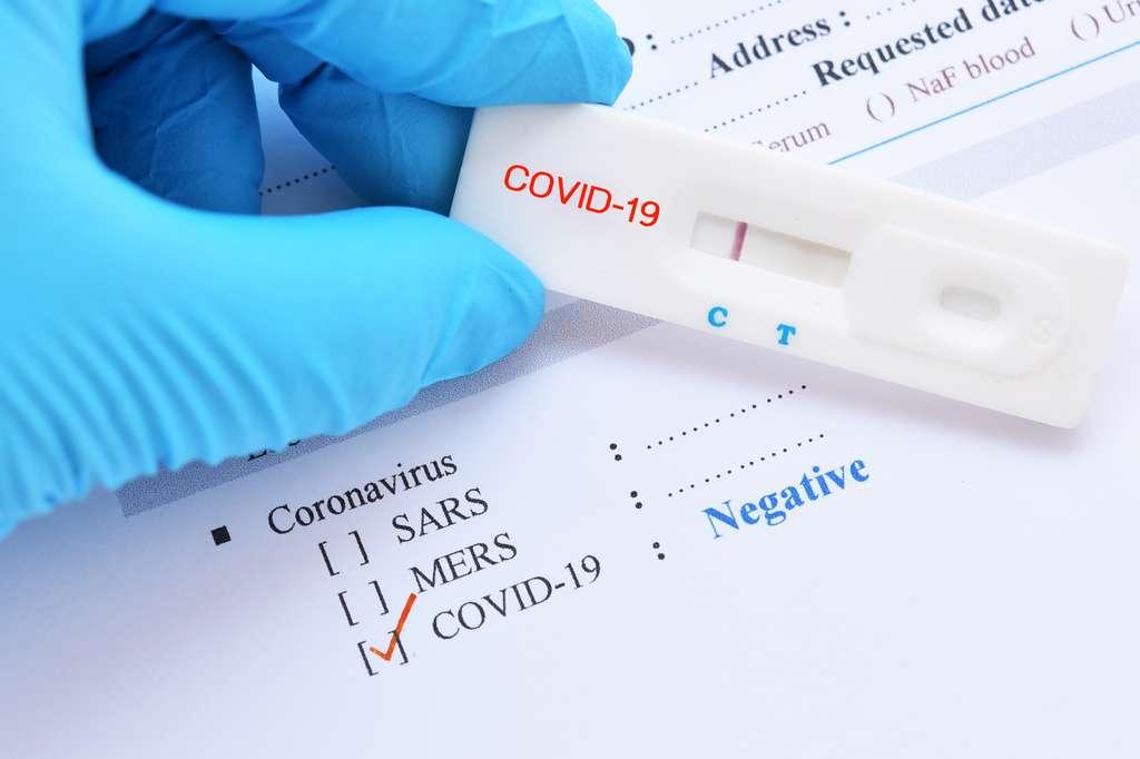 Les tests sont les plus sensibles 21 jours après le début des premiers symptômes. © jarun011, Adobe Stock