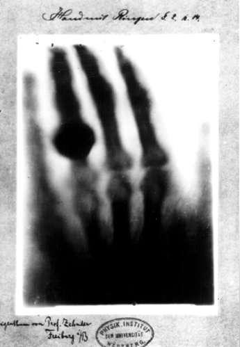 Wilhelm Röntgen, physicien allemand, découvre les rayons X et reçoit ainsi le premier prix Nobel de physique en 1901. Pour continuer le voyage dans le temps de la médecine, cliquez sur l'image. © Wilhelm Röntgen, 1895
