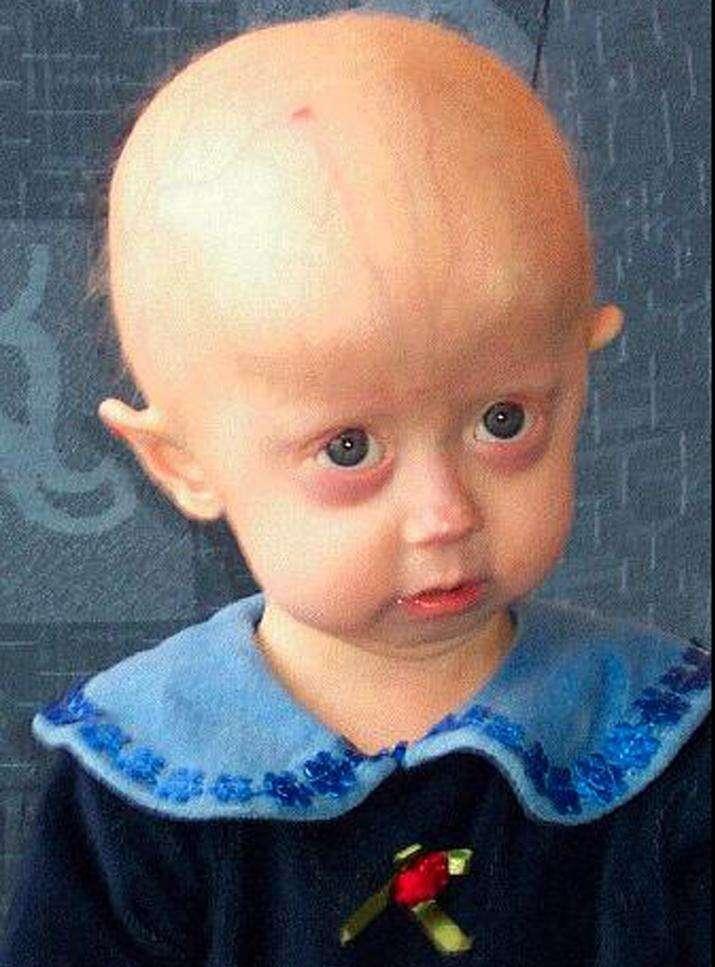 La progéria touche également l'Homme, mais de manière exceptionnelle. La maladie génétique se manifeste entre 1 et 2 ans et entraîne de nombreuses modifications physiques comme une alopécie (accélération de la chute des cheveux) ou une taille inférieure à 1 m 20. Les patients meurent en général durant l'adolescence. © Scaffidi et al., Plos One, cc by 2.5
