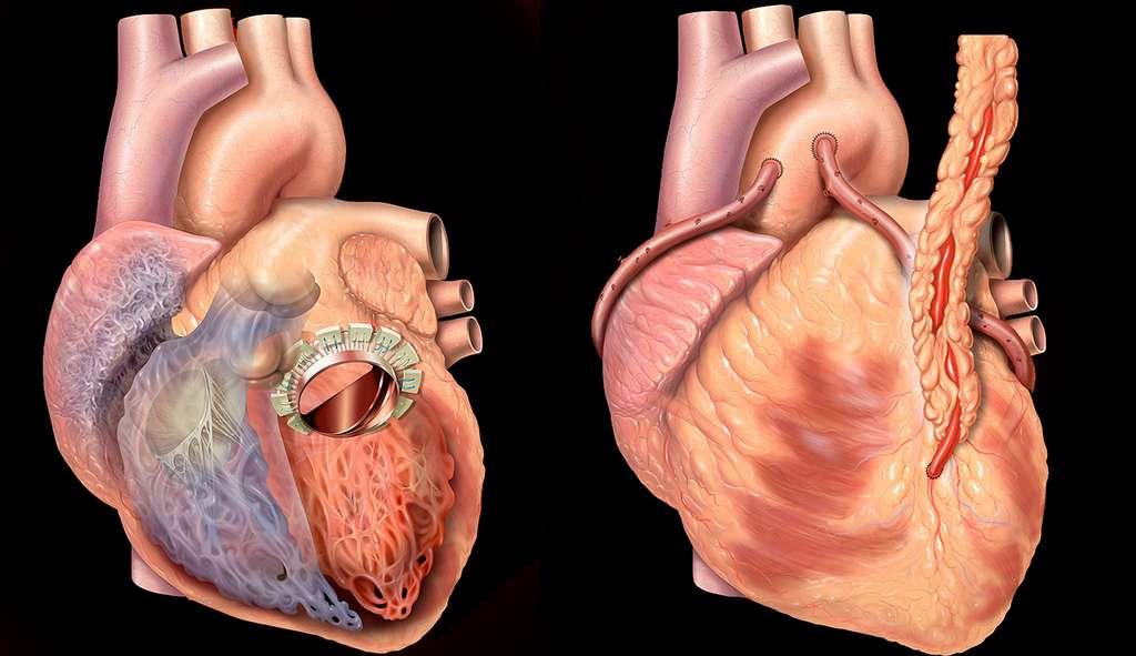 Opérations du cœur