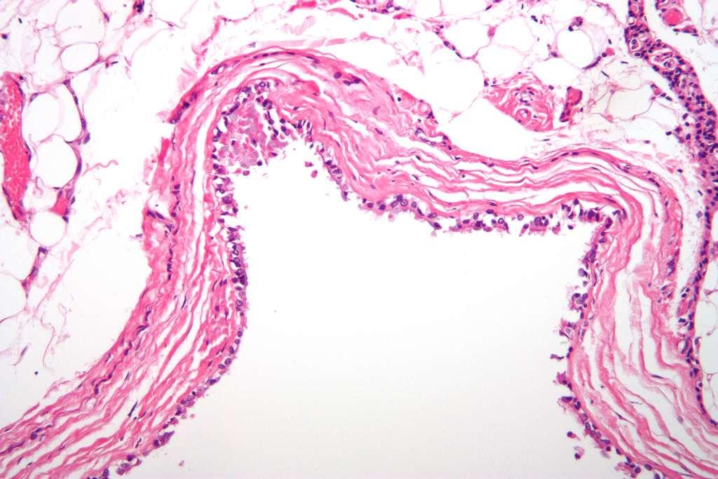 Le granulome peut former un abcès dentaire ou un kyste. © Nephron, Wikipédia, CC by-sa 3.0