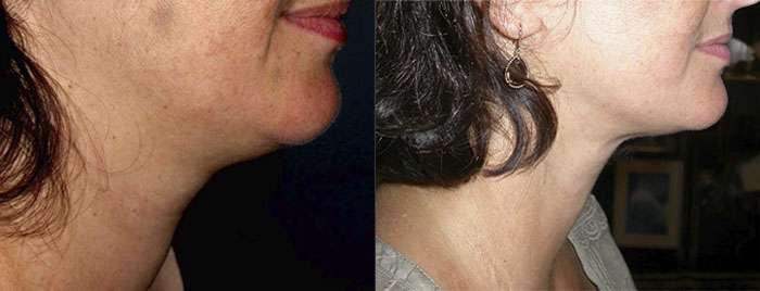 Lipolift du cou avant et après. © Dr Mitz, tous droits réservés