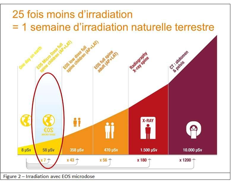 Des progrès ont été réalisés dans la technologie radiologique EOS. © Docteur Jean Claude de Mauroy - Tous droits réservés/Reproduction interdite