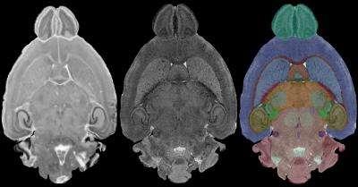 Comparaison des images d'une même coupe de cerveau. La première (gauche) a été obtenue par observation optique alors que celle du milieu a été obtenue par résonance magnétique. La dernière (droite) est une coloration des différentes structures cérébrales identifiées grâce à la précision de l'imagerie par résonance magnétique. © G. Allan Johnson, Duke Center for In Vivo Microscopy