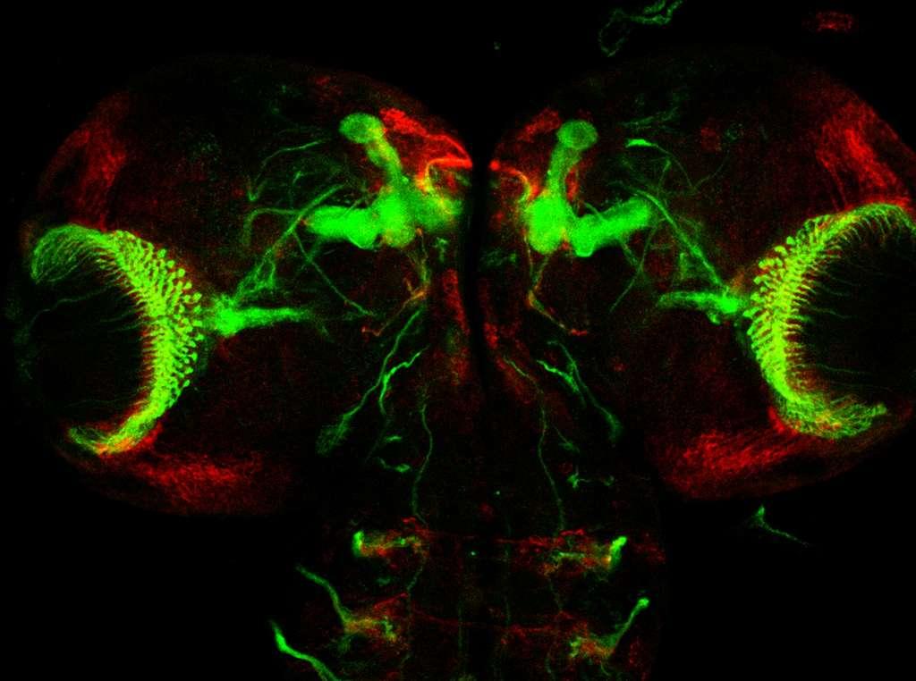 Cerveau d'une larve de mouche et ses corps pédonculés
