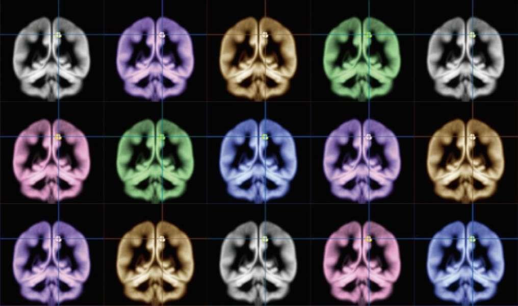 Dans cette étude, le précunéus des personnes heureuses ou ayant tendance à ressentir les émotions positives plus intensément paraît plus volumineux. © Kyoto University