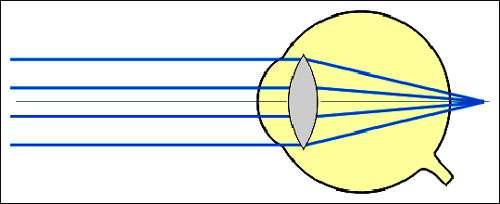 Œil hypermétrope. © Reproduction et utilisation interdites