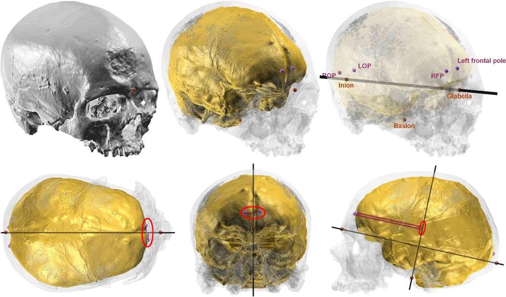 Illustration du protocole utilisé pour quantifier les « pétalias », exemple pour Cro-Magnon 1 (le crâne et l'endocrâne de chaque spécimen sont reconstruits virtuellement en 3 dimensions grâce à des données d'imagerie, puis des points repères sont positionnés sur ces surfaces pour mesurer la position relative des points antérieurs des lobes frontaux et postérieurs des lobes occipitaux). © A.Balzeau (CNRS/MNHN)