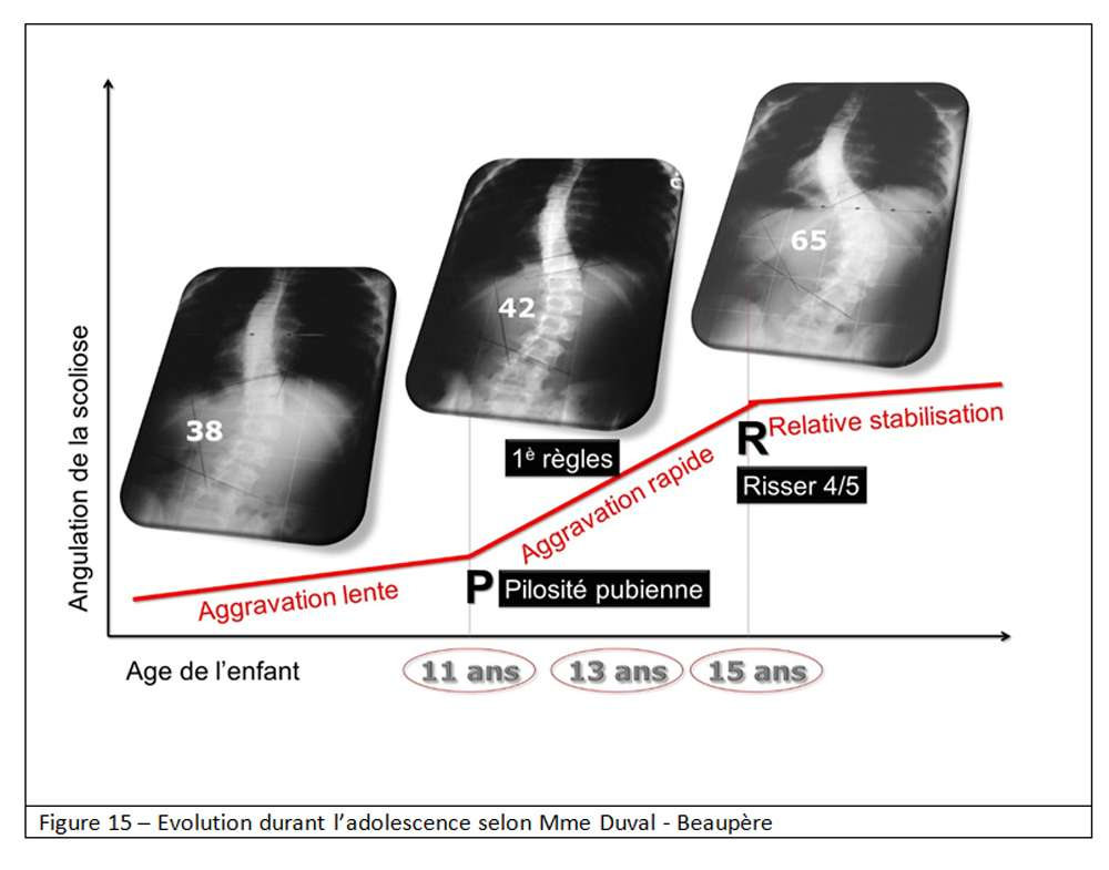La scoliose peut évoluer durant l'adolescence selon la courbe de Duval-Beaupère. © Docteur Jean-Claude de Mauroy. Tous droits réservés/Reproduction interdite