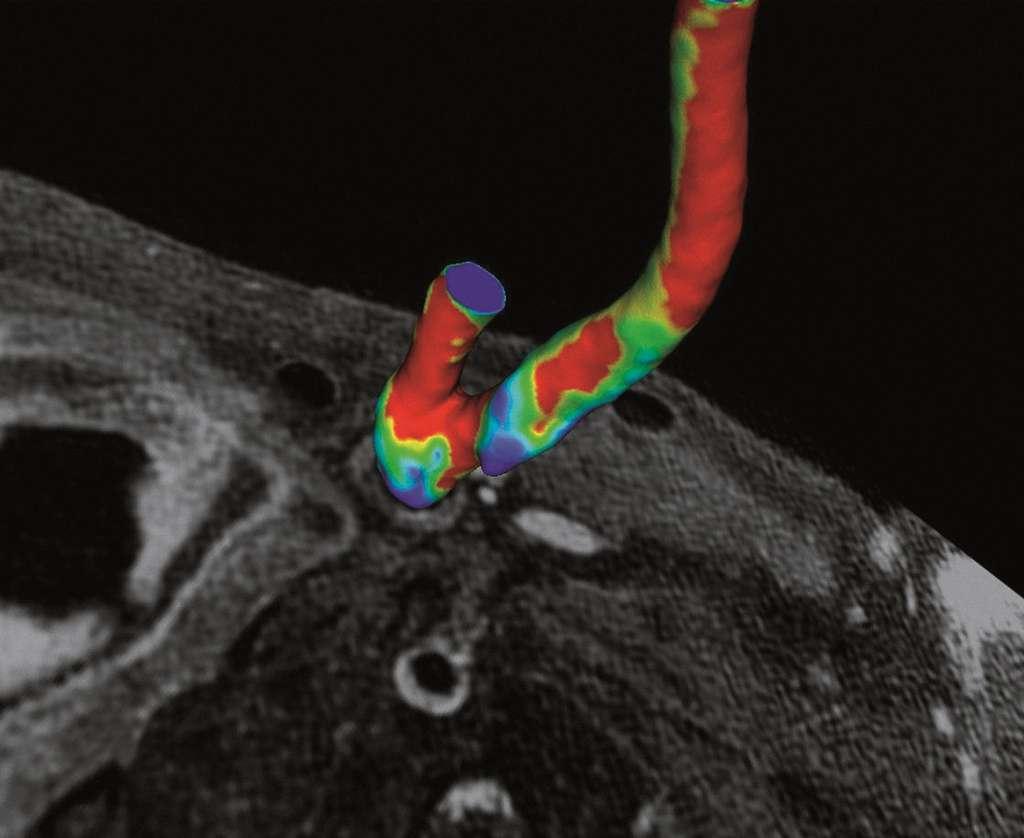 L'IRM pour mesurer le flux sanguin