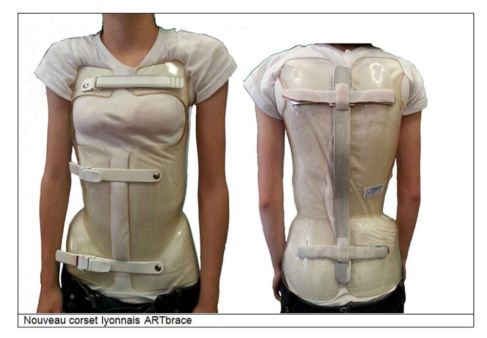 De nombreux évènements ont marqué ces dernières années la prise en charge des patients scoliotiques, notamment en ce qui concerne les corsets. © Docteur Jean-Claude de Mauroy. Tous droits réservés/Reproduction interdite