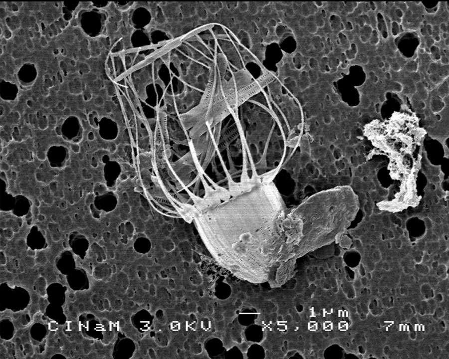 Un choanoflagellé, prédateur de cellules phytoplanctoniques, vu en microscopie électronique à balayage au Centre interdisciplinaire de nanoscience de Marseille (CINaM). © Serge Nietsche